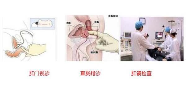 肛周脓肿的治疗,重庆康华医院肛肠外科
